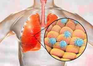 novel coronavirus respiratory infection